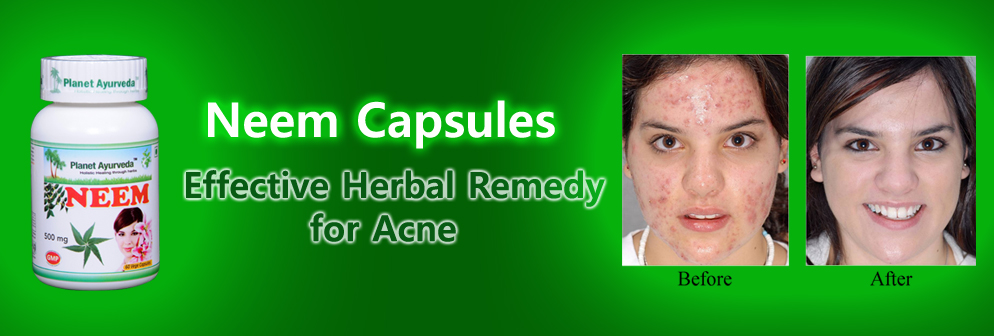 Neem Capsules - Effective Herbal Remedy for Acne